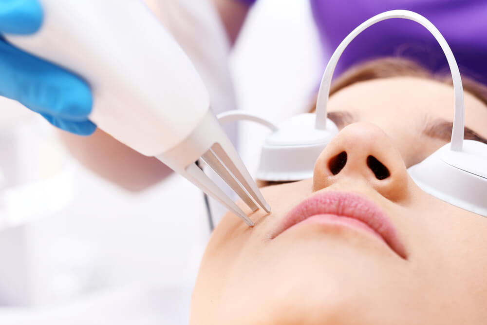 laser treatment for acne scars